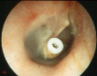 Ear drum with ventilation tube (Grommet)
