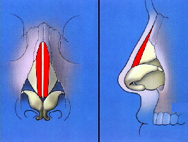 Reduction of nasal hump by removal of bone and cartilage shaded red