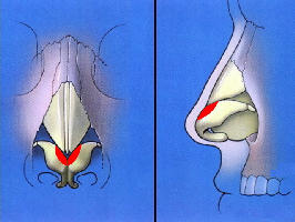 Narrowing nasal tip by excision of cartilage marked red and reconstruction with sutures