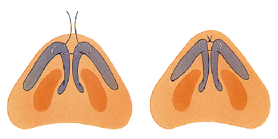Narrowing of the nasal tip